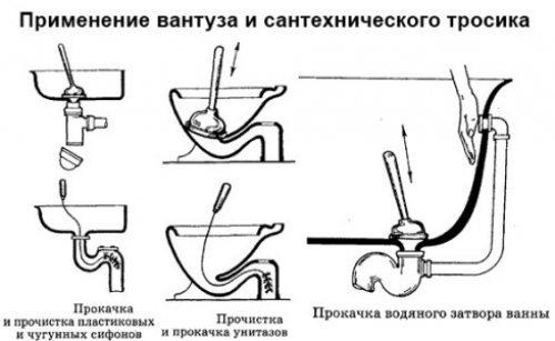 Варианты использования вантуза.